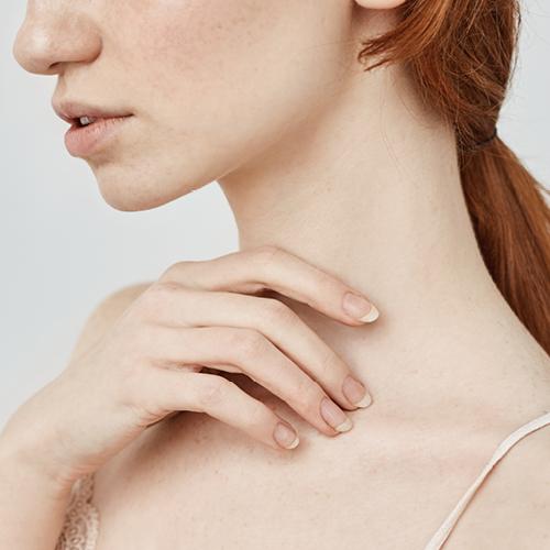 Frau mit sensibler Haut