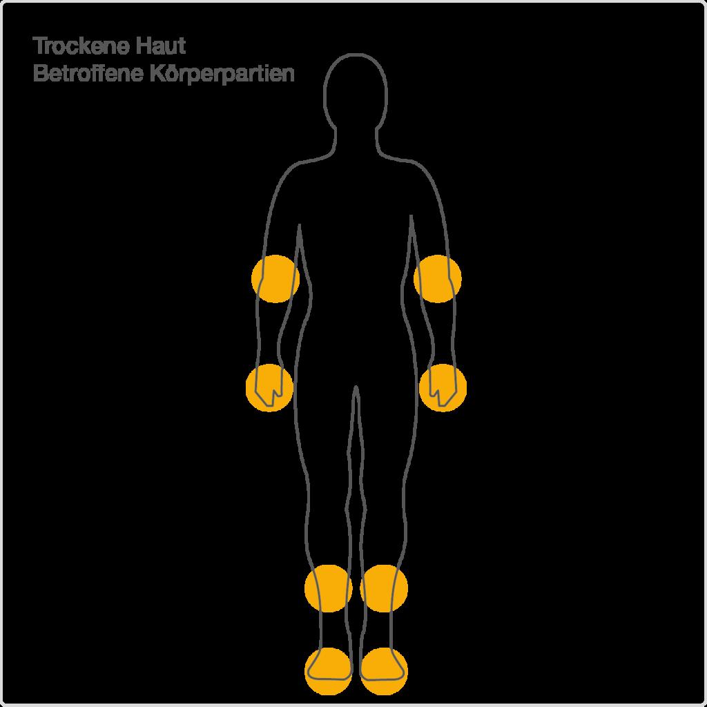 Schematische Darstellung von trockenen Körperpartien