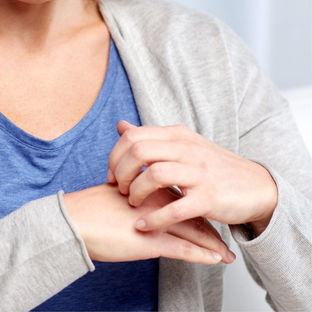 Frau kratzt ihre juckende Hand