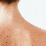Frau mit Hyperpigmentierungen am Rücken